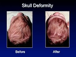 skull_deformity