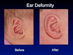 ear_deformity