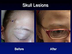 skull_lesions